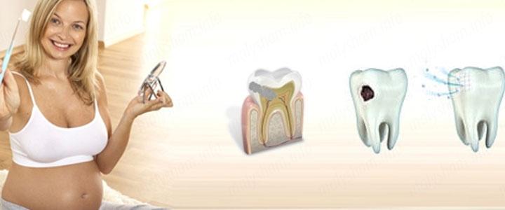 Зачем лечат зубы при беременности
